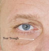 restylane-tear-troughs-large