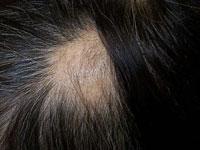 alopecia1-s